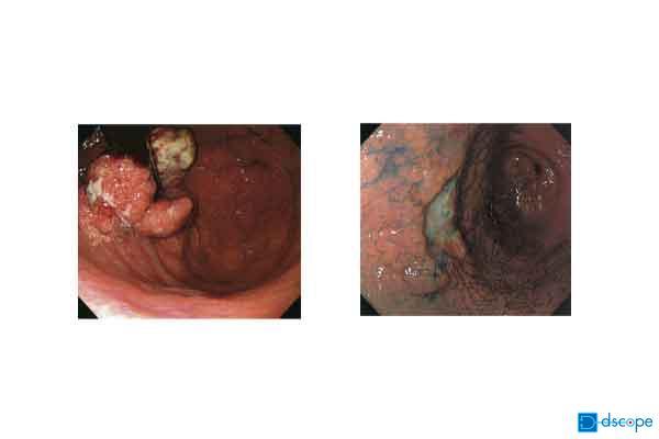 胃がん内視鏡