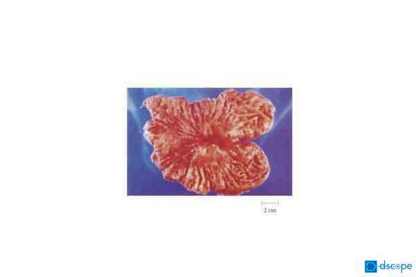 胃がん(手術標本)