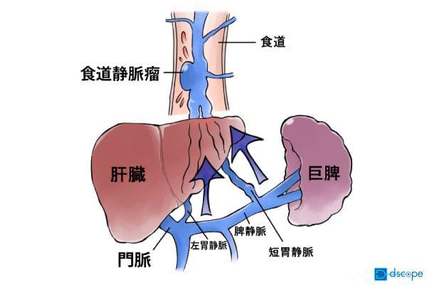 食道静脈瘤