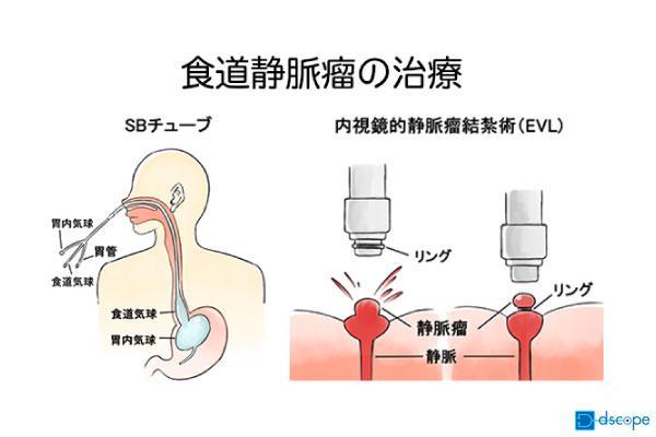 食道静脈瘤の治療