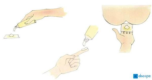 外痔核治療