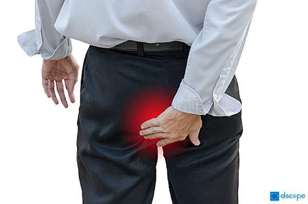 特発性肛門痛