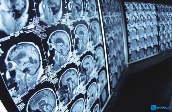 脳卒中、脳こうそく、くも膜下出血
