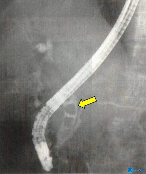 総胆管結石
