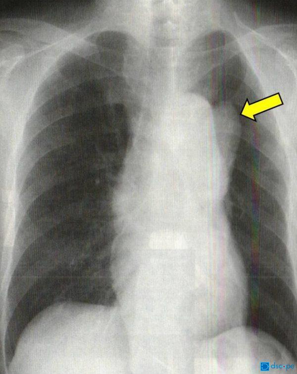 レントゲン(大動脈瘤)