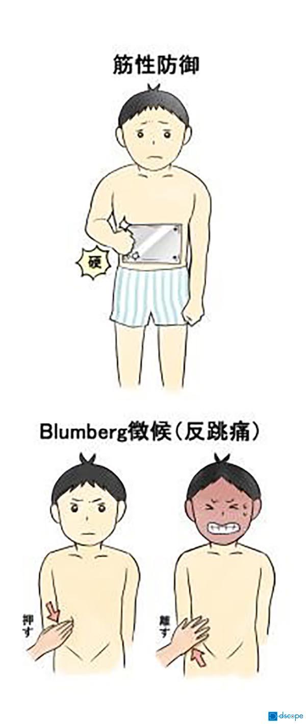 腹膜炎(急性腹膜炎)
