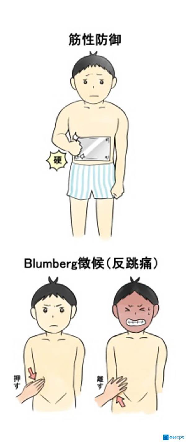 急性虫垂炎(きゅうせいちゅうすいえん)